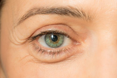 7ffe7ac200 Puffy eyes and dark circles under the eyes occur for many reasons